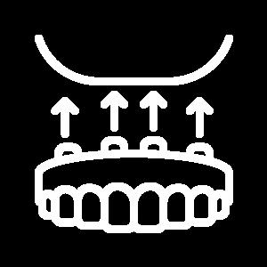 Protesi dentaria riabilitativa ed estetica