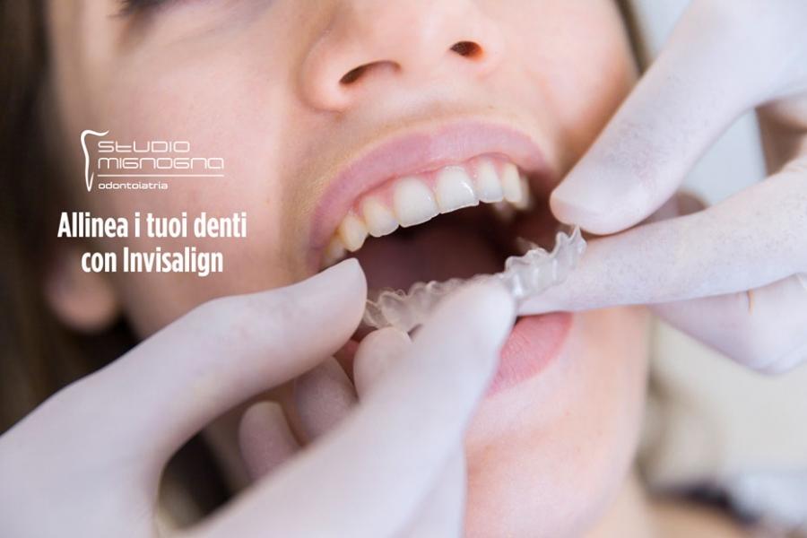 Invisalign: il sistema invisibile per allineare i tuoi denti