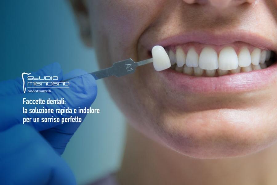 Faccette dentali: la soluzione rapida e indolore per un sorriso perfetto