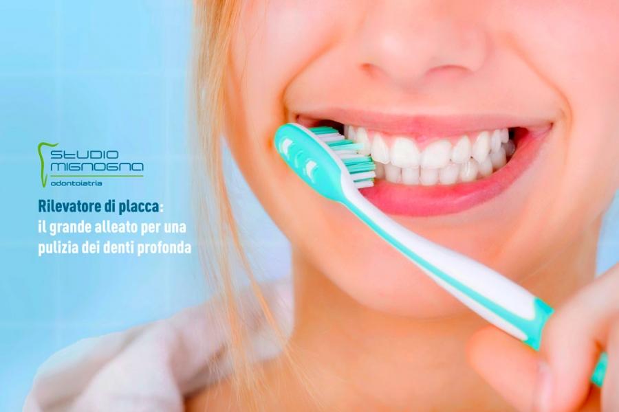 Rilevatore di placca: il grande alleato per una pulizia dei denti profonda